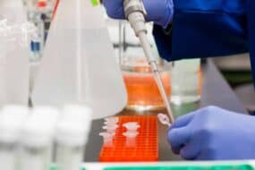 DNA Test Kit στην Ελλάδα